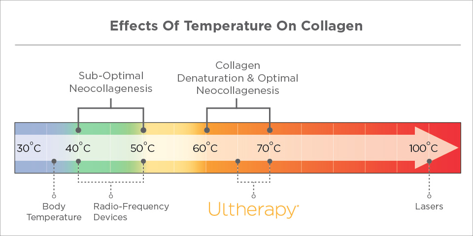 4_Key_Factors-Temperature