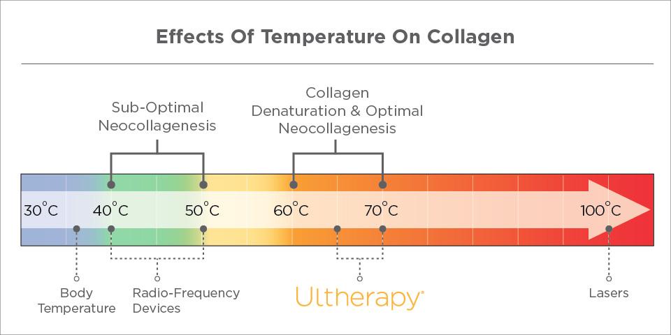 4_Key_Factors-Temperature
