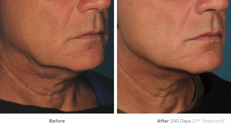 before_after_ultherapy_results_under-chin35
