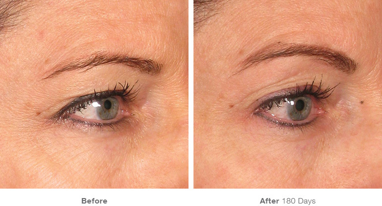 img_template_beforeafter_brow10