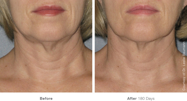 ultherapy-0025-0086w_180day_1tx_neck_gallery